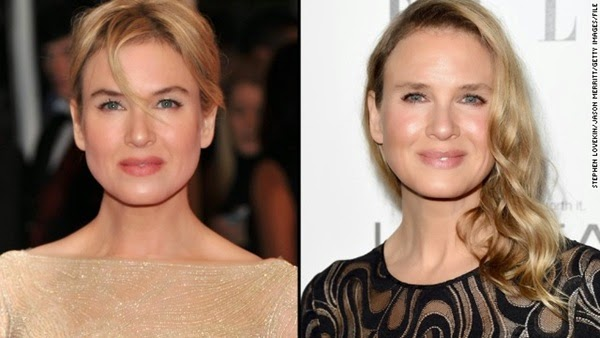141021072325-renee-zellweger-2014-split-horizontal-gallery