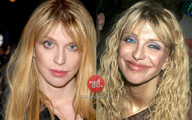 Lip augmentation of Courtney Love