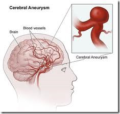 brain aneurysm, causes, risk factors