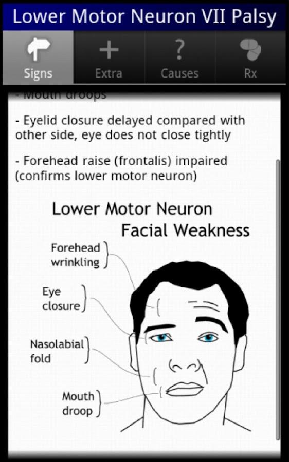 Neurology OSCE cases- ekran görüntüsü