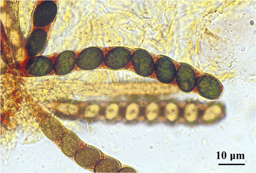 A linear, cylindrical, eight-spored ascus of Sordaria fimicola