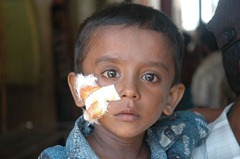 wounded-tamil_child