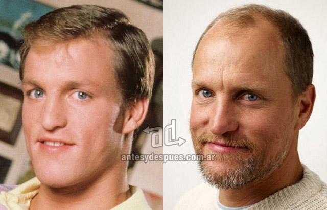 La caida del pelo de Woody Harrelson