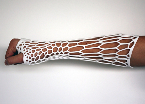 Dezeen Cortex 3D printed cast for broken bones by Jake Evill 2 500
