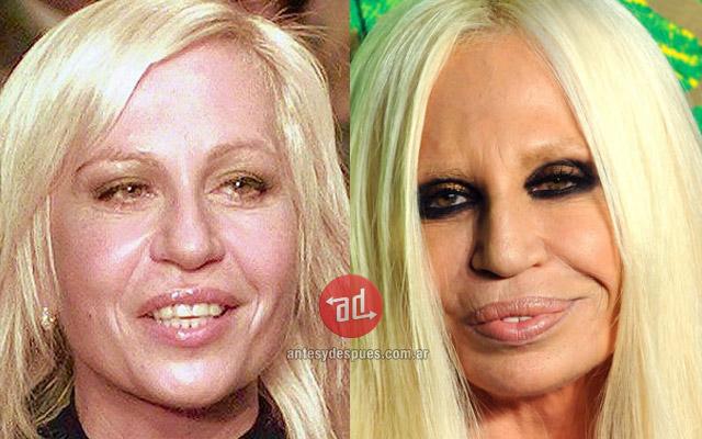 Lip augmentation of Donatella Versace