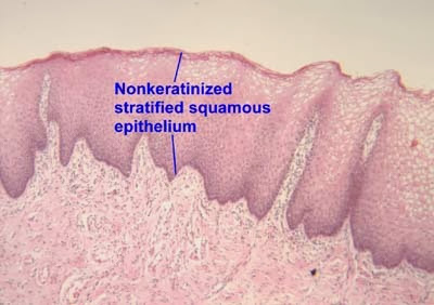Non keratinized stratified epithelium