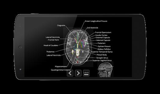 Descargar Atlas of MRI Brain Anatomy APK 1.1 APK para Android ...