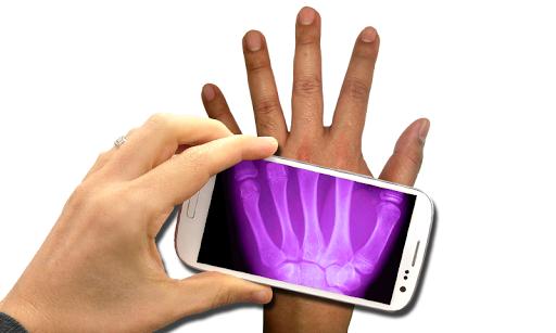 X射線掃描儀。 Prank