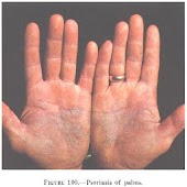 Ways To Cure Psoriasis