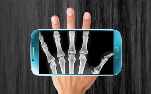 玩免費娛樂APP 下載X光扫描器 app不用錢 硬是要APP