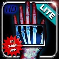 Amazing X-Ray FX ² ...