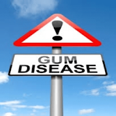 Gum Disease Center