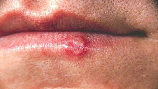 How To Cure Cold Sore - screenshot thumbnail