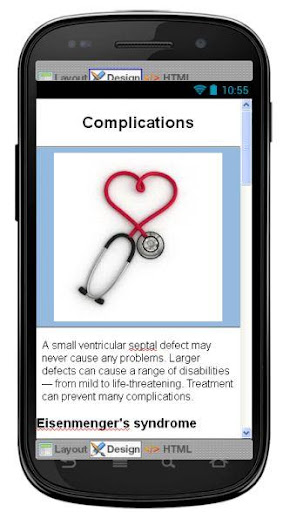 玩醫療App|Ventricular Septal Defect免費|APP試玩