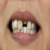 Chipped Tooth Solution