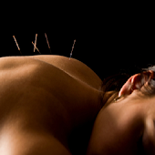 Acupuncture Method