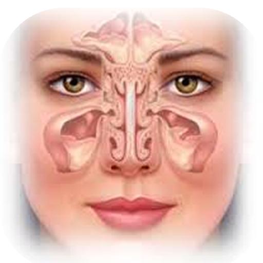 Sinusitis 醫療 App LOGO-APP開箱王