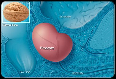 Prostate Cancer Symptoms