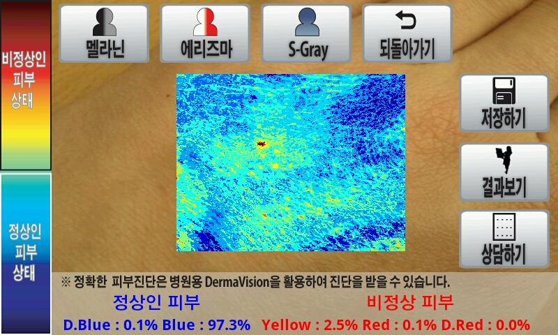 Dermavision - screenshot