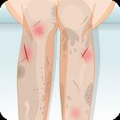 Leg Nursing Care