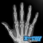 X-射線掃描儀解鎖 icon
