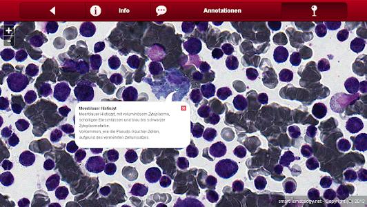 Smart Hematology v1.1.1