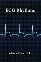 Screenshot of ECG Rhythms (The EKG Guide)