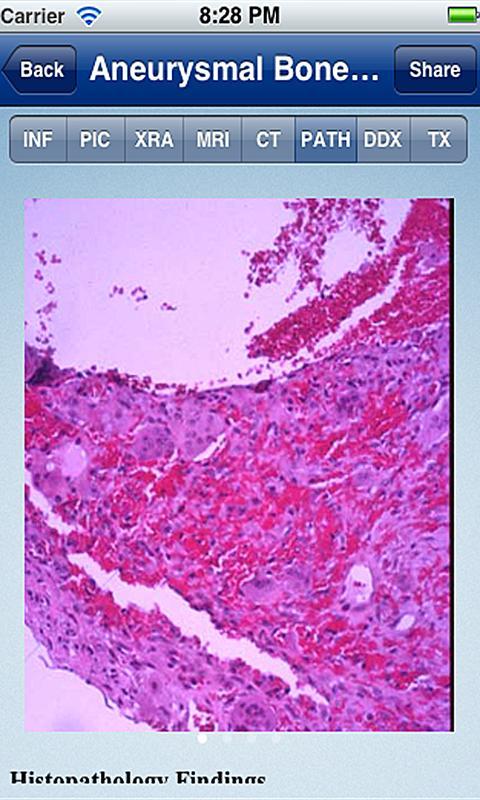 Tumorpedia Foot & Ankle- screenshot
