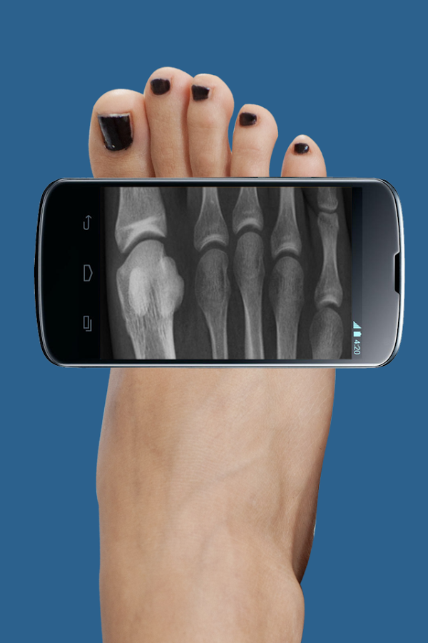 Xray Scan - screenshot