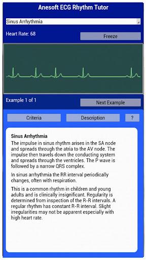 【免費醫療App】ECG Rhythm Tutor-APP點子