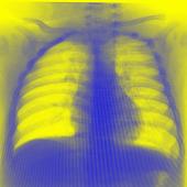 Ventilación mecánica pediatría