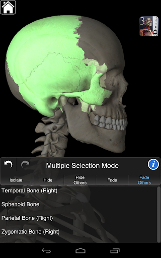 Essential Skeleton 3 Screenshot