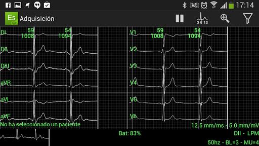 ElectroSmart ECG