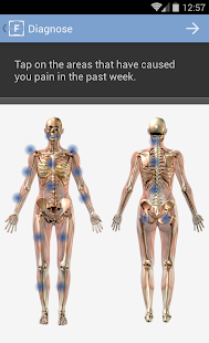 FibroCite for Fibromyalgia- screenshot thumbnail