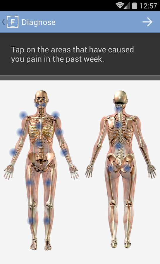 FibroCite for Fibromyalgia- screenshot