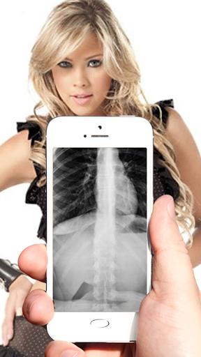 Camera X-ray Prank