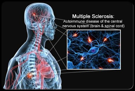 Multiple Sclerosis Treatment screenshot 3