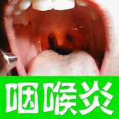 咽喉炎食疗调养菜谱