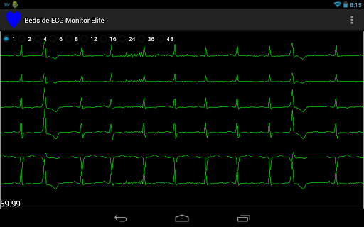 Bedside ECG Monitor Elite