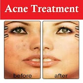 FREE Remove Acne Scars Easily