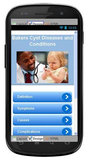Bakers Cyst Disease Symptoms