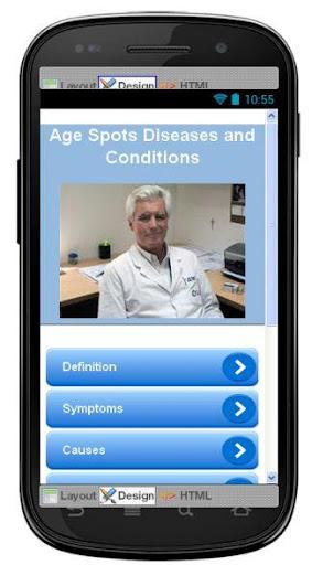 Age Spots Disease Symptoms