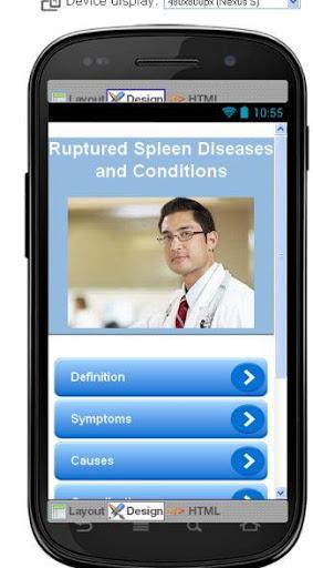 Ruptured Spleen Information
