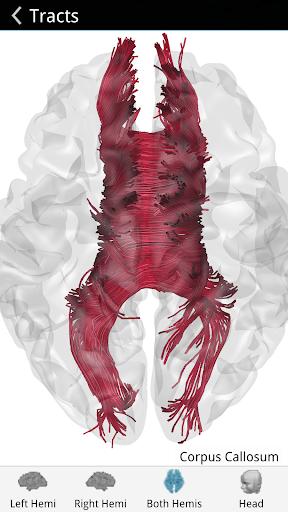 Brain Tutor 3D