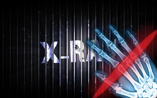 X射線掃描儀免費