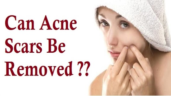Acne Tips - screenshot thumbnail