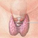 Hypothyroidism Diet icon