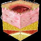 Braden Scale 4 Pressure Ulcer icon