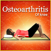 Osteoarthritis of knee