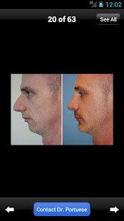 Rhinoplasty with Dr. Portuese- screenshot thumbnail